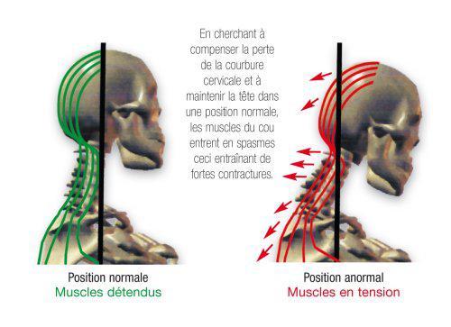 cervicales douloureuses